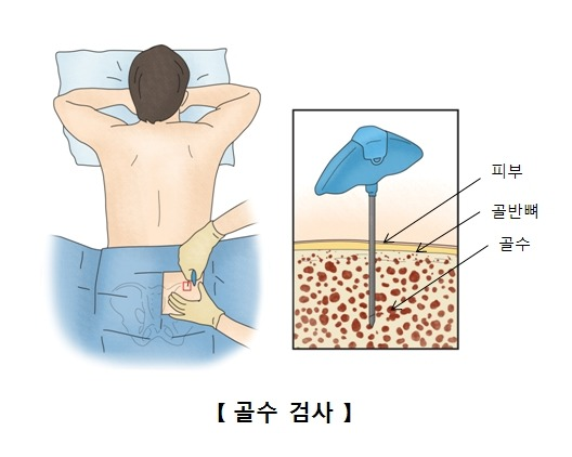 골수이형성증후군